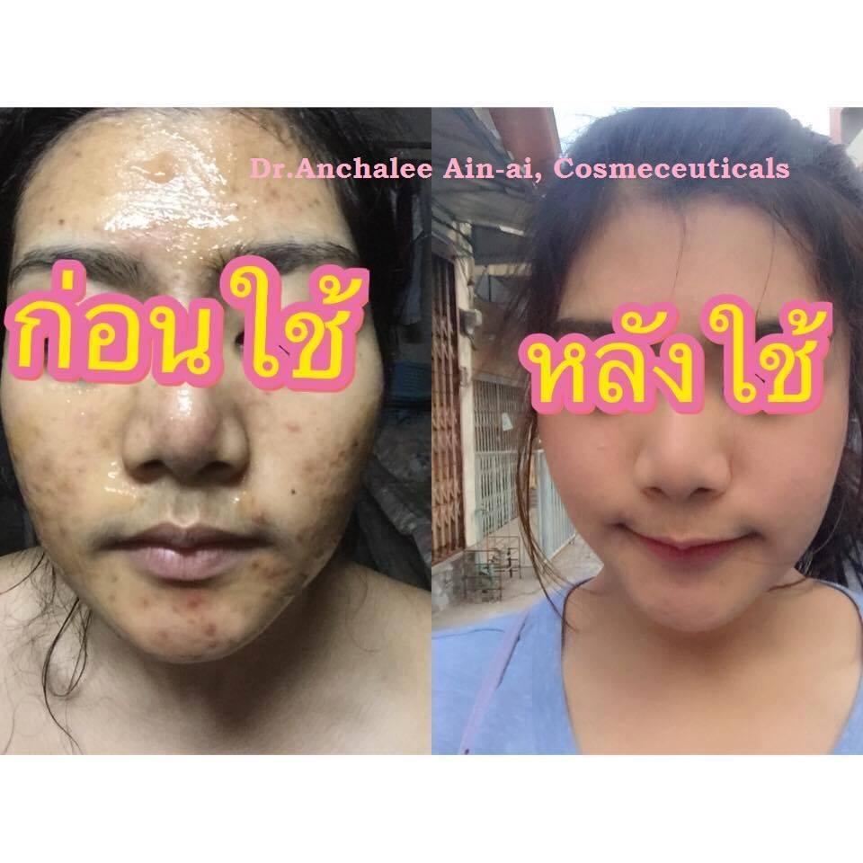 Customer Review - Dr. Anchalee Ain ai, Cosmeceuticals USA – เวชสำอางจากธรรมชาติ