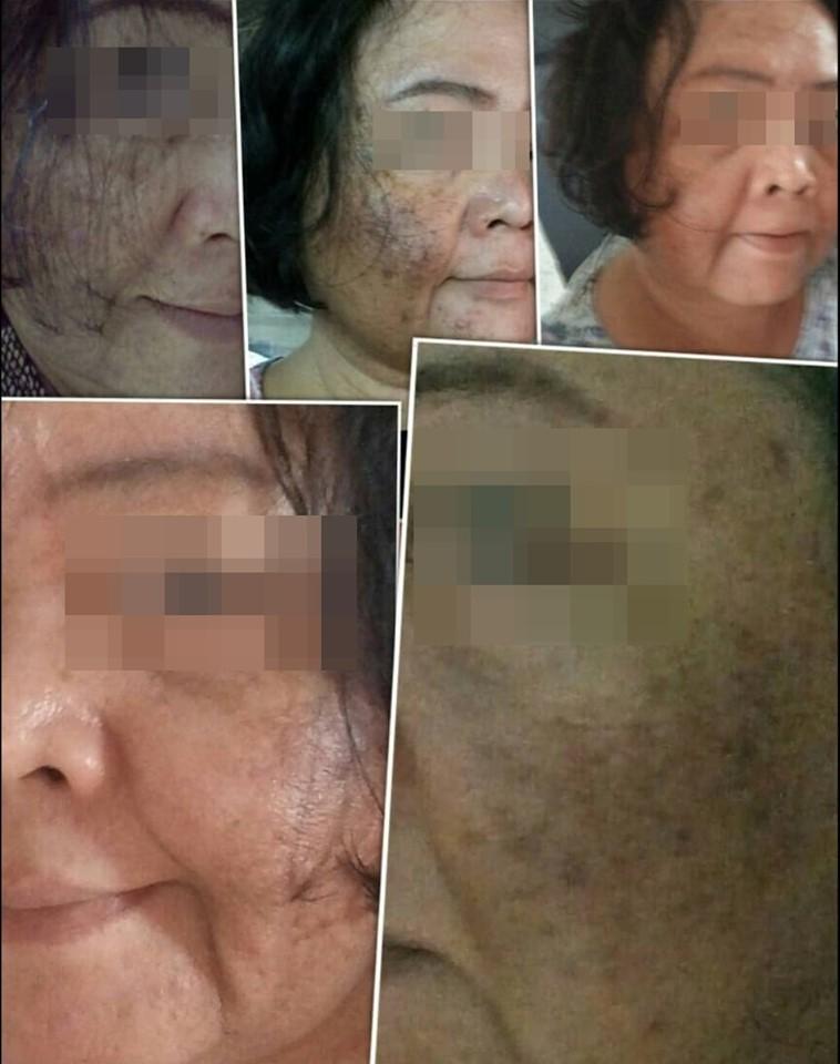 Dr. Anchalee Ain ai, Cosmeceuticals USA – เวชสำอางจากธรรมชาติ